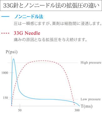 33G針とノンニードル法の拡張圧の違い